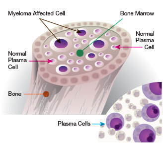 Multiple myeloma mechanism of action